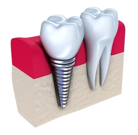 Three Cases Wherein You Might Have Urgent Need of Dental Implants | SimmondsDentalCenter | Scoop.it