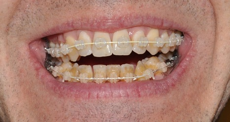 Metallic Dental Braces Delhi, Metal Braces New Delhi, Metallic Dental Braces, Metallic Dental Braces India | How Much Do Teeth Implants Cost, Tooth Implants | Scoop.it