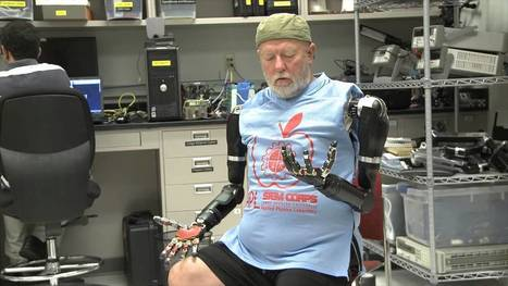 Amputee Makes History with APL's Modular Prosthetic Limb - Alien UFO Videos | Amazing | Scoop.it