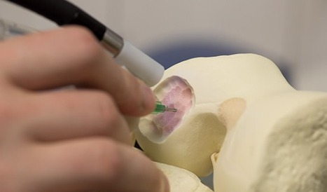 3D printing pen lets surgeons draw cells on damaged bones, speeding recovery | FabLab today | Scoop.it