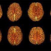 Les hommes et les femmes ont-ils des cerveaux différents ?   Genre, construction et prégnance des stéréotypes.   Scoop.it