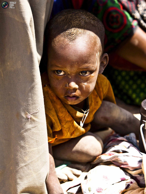 Hunger In The Horn Of Africa >> TotallyCoolPix | Photojournalism - Articles and videos | Scoop.it