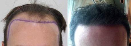 Hair Transplantation as a Treatment of Hair Loss   Royal Cosmetic Surgery   Scoop.it