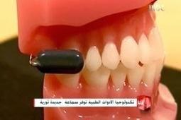 donia al teb: جهاز ينقل الصوت عبر الأسنان لضعاف السمع | shimaaspc | Scoop.it