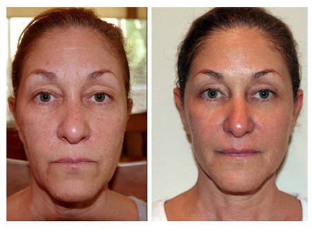 Facial Exercise Before and After | Facial Exercises | Scoop.it