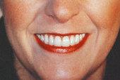 Dental Implants NJ | Dental Veneers | Implant Surgery NJ | Dental Implants | Scoop.it
