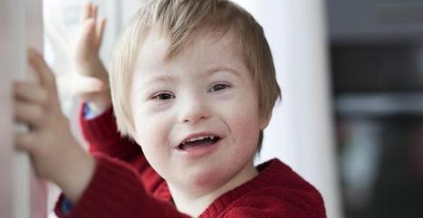 Trisomie 21 : Des malades rassurent une future mère, la vidéo émouvante | meltyBuzz | Bioéthique | Scoop.it