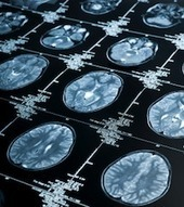 High-Stakes Decision Making: How Neuroscience Rescues Behavioral Finance   Bounded Rationality and Beyond   Scoop.it