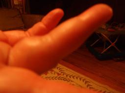 My Bruising and Swelling Finger from Filling Our Red Puppy's Bowl | CeladonLotus | Scoop.it