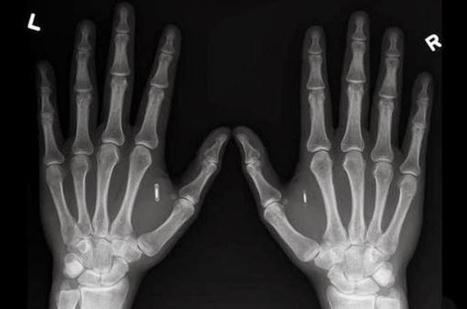Une femme a des micropuces implantées dans chacune de ses mains   Une nouvelle civilisation de Robots   Scoop.it