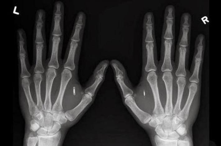 Une femme a des micropuces implantées dans chacune de ses mains | Internet du Futur | Scoop.it