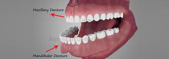 Dentures Baltimore MD, Baltimore dentures | Dentistry Baltimore | Scoop.it