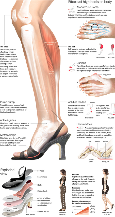 Visualistan: The Effects Of High Heels On Body [Infographic] | Health | Scoop.it