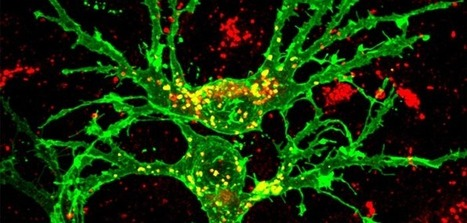 Experimental drug that may repair nerve damage in MS moves forward | Social Neuroscience Advances | Scoop.it