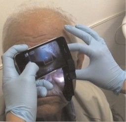 iPhone attachment allows doctors to view the front and back of an eye | mHealth- Advances, Knowledge and Patient Engagement | Scoop.it