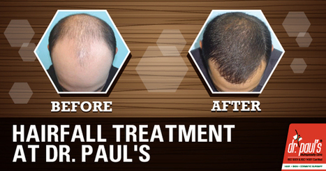 HAIRFALL TREATMENT AT Dr.Paul's | Skin Care | Scoop.it
