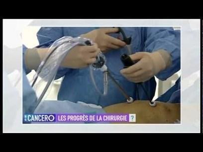 AP-HM Cancéro | le monde de la e-santé | Scoop.it
