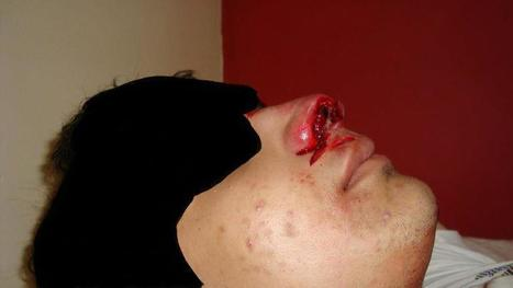Sitra, Bahrain:  Protester injured with soundbomb to face | Human Rights and the Will to be free | Scoop.it