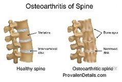 Arthritis Of The Spine Uk | Provailen Details - My Provailen Review | Breath Deep Pilates | Scoop.it