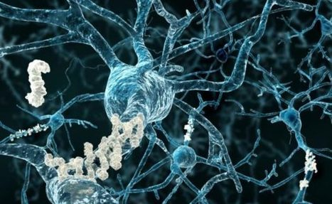 This New Breakthough Alzheimer's Treatment Fully Restores Memory Function | Health Supreme | Scoop.it