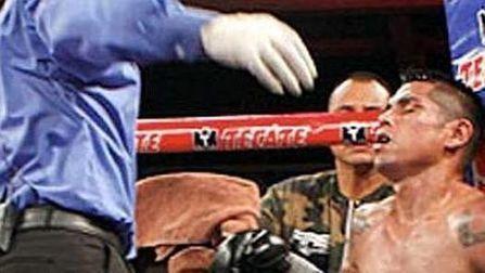 Trágico final para el boxeador mexicano Frankie Leal - Clarín.com   artes marciales   Scoop.it