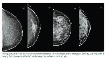 Seeing the Unseen: Ultrasound's New Role in the Fight Against Breast Cancer - GE Reports | PARP Inhibitors Cancer Review | Scoop.it
