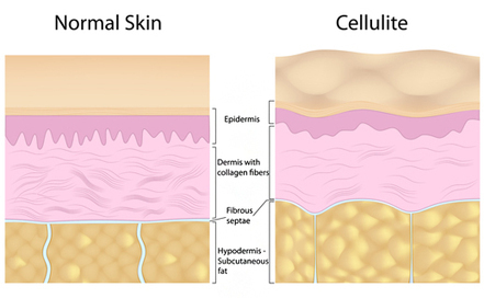 what causes cellulit | lynn44hb | Scoop.it
