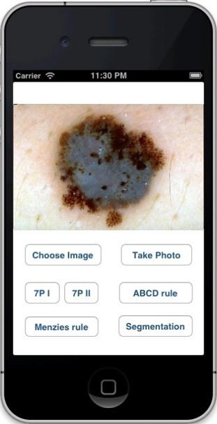 University of Houston professor develops app to detect skin cancer - mobihealthnews | E-santé | Scoop.it