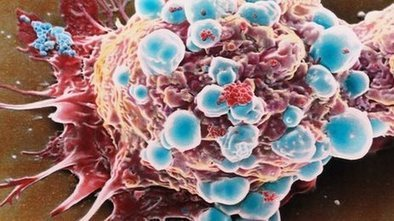 New breast cancer test 'offers hope' | HORRIBLE HEADLINES | Scoop.it