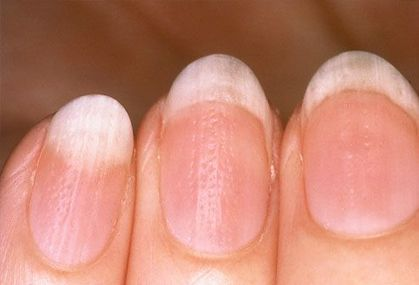 Tips For How to Repair Split Nails? | Healthy Tips | Scoop.it