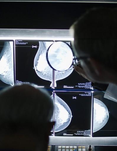 Des médicaments HTA augmenteraient les risques de cancer du sein | Médicaments | Scoop.it