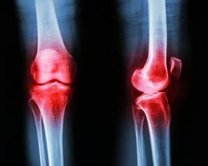 One third of total knee replacements in US are 'inappropriate'   Preventive Medicine   Scoop.it