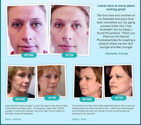 Miracle Phytoceramides Review - Get Free Trial | Skin Care With Miracle Phytoceramides | Scoop.it