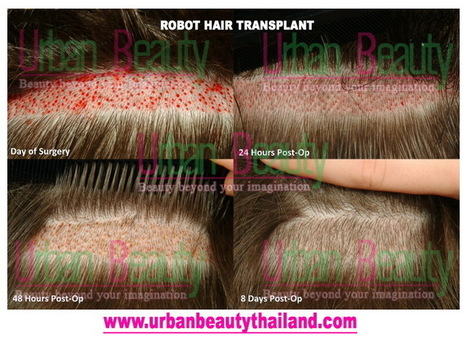 Robot Hair Transplant Thailand, Save up to 70% less with Hair Transplant Bangkok - Urban Beauty Thailand | By Urban Beauty Thailand | CoolSculpting Zeltiq LOWEST Price Bangkok, Thailand for Sexier You - Liposuction, Vaser Lipo, Vaser Hi-def, Body Tightening Thailand | Scoop.it