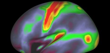 Des chercheurs dévoilent une carte du cerveau d'une précision inégalée   Neurosciences   Scoop.it