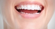 Avoir des dents blanches   Chirurgie dentaire   Scoop.it
