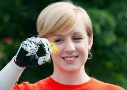 Woman from London Gets World's Most Advanced Bionic Hand Replacement | Karl Michale's Scoop | Scoop.it