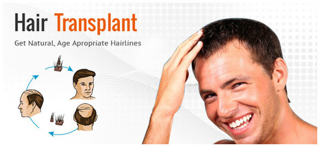 Lowest Price in India for Hair Transplant Surgery offered in Kolkata | A Guide to Hair Transplant | Scoop.it