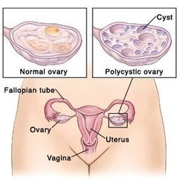 POLYCYSTIC  OVARY SYNDROME & HOMEOPATHY | womens health | Scoop.it