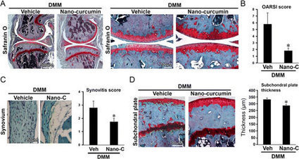Topically applied curcumin nanoparticles alleviates joint pain and slows progression of Osteoarthritis | Shaping the Future of Medical Technology | Scoop.it