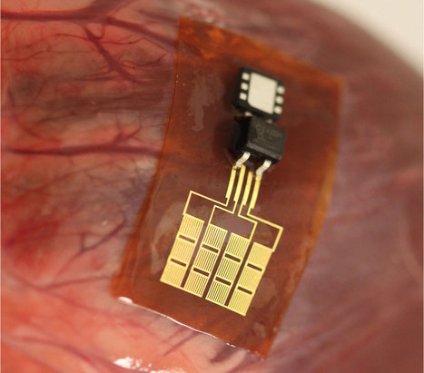 Nanoribbons let beating hearts power their own pacemakers | 21st Century Innovative Technologies and Developments as also discoveries, curiosity ( insolite)... | Scoop.it