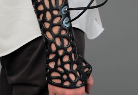 A 3D Printed Cast That Speeds Up Bone Recovery Using Ultrasound | DigiPharmaBlog | Scoop.it