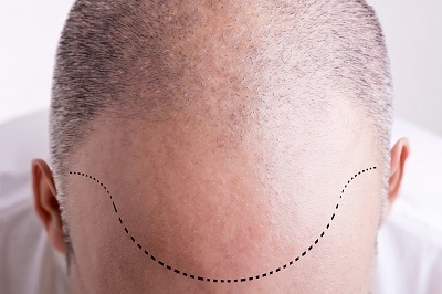 The Real Advantages of Getting a Hair Transplant in Philadelphia | Dr. Anthony Farole, D.M.D. | Scoop.it