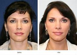 Houston Plastic and Craniofacial Surgery in Texas Providing Advanced Facelift Surgery | health and fitness | Scoop.it