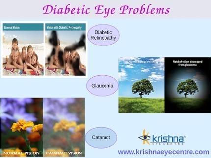 Krishna Eye Centre Parel - Google+ | Best Eye Hospital in Mumbai | Scoop.it