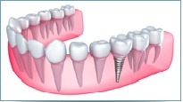 Dental Implant Clinic Vancouver | Vancouver Harbour Dental | Scoop.it
