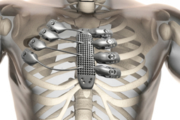 We Can Rebuild Him: Patient Receives 3D Printed Titanium Ribs and Sternum - Singularity HUB | The future of medicine and health | Scoop.it