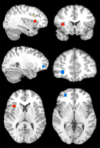 Cognition and behavior: Autism brains normalize over time — | Curiosity | Scoop.it