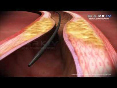 Coronary artery stents in Atherosclerosis | Group 26 | Scoop.it
