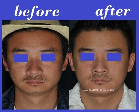 Medpore Chin Implant Thailand Photos | Bangkok Aesthetic Surgery Center | The Best Plastic Surgery Clinic In Thailand | Scoop.it